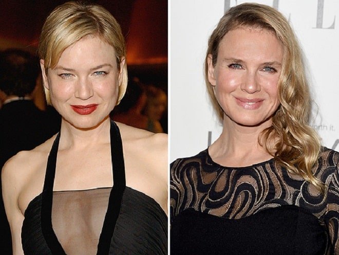 Renee Zellweger Before and After Plastic Surgery: facelift ...